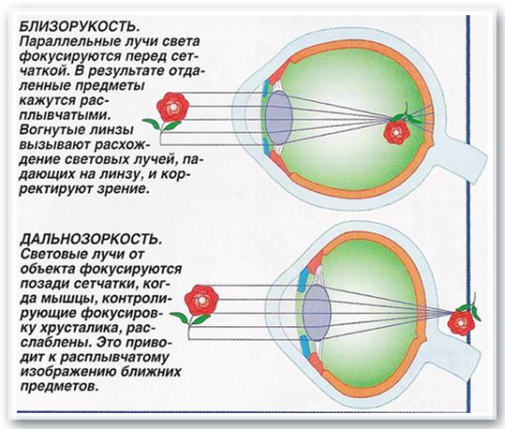 дальнозоркость близорукость схемы