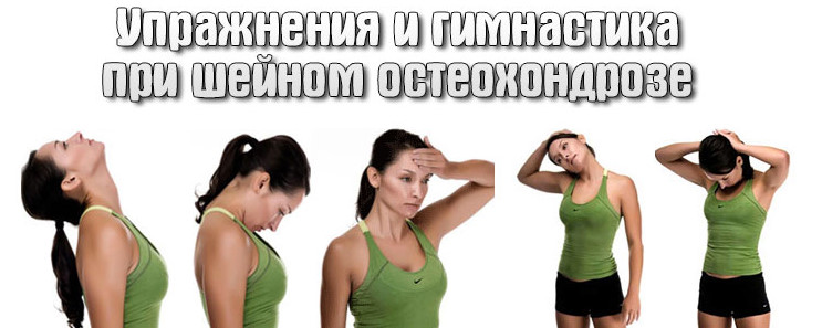 упражнения при шейном остеохондрозе лечебная физкультура