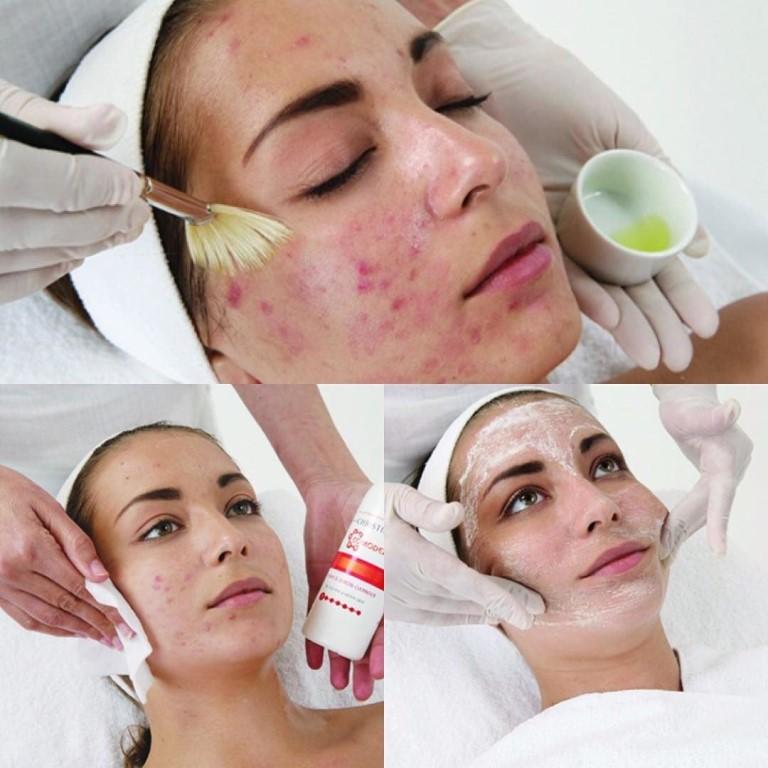 Увлажняющий Крем От Прыщей Garnier Skin Naturals