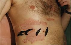 Лечение Псориаза В Китае Отзывы