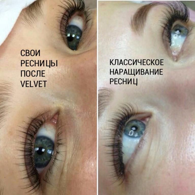 На фото глаза одной клиентки
